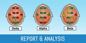 QEEG Brain Map Report
